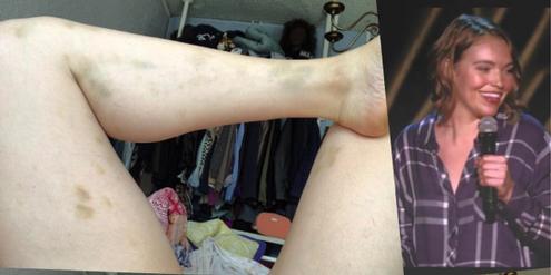 Die Beine von Beth Stelling sind nach der Vergewaltigung von blauen Flecken übersät.